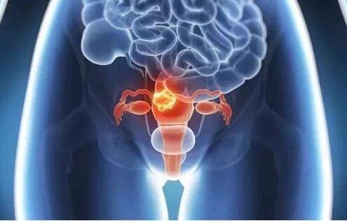 子宫卵巢怎么保养 注意7点让你更年轻