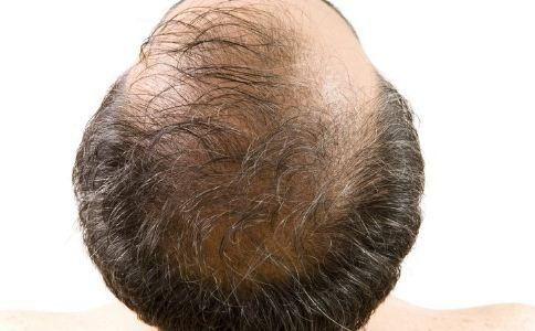 压力大脱发、男性中年秃头该怎么办