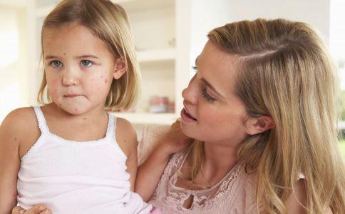 又到水痘高发季节,春季该如何让孩子安全远离水痘
