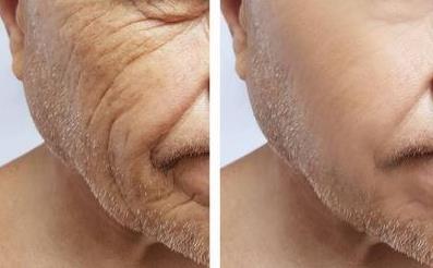 男人开始衰老时有迹象