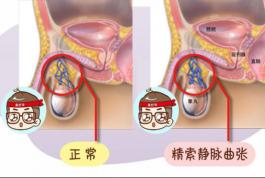精索静脉曲张有什么危害?该怎么办?